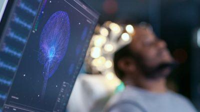 Man sleeping during his brain scan